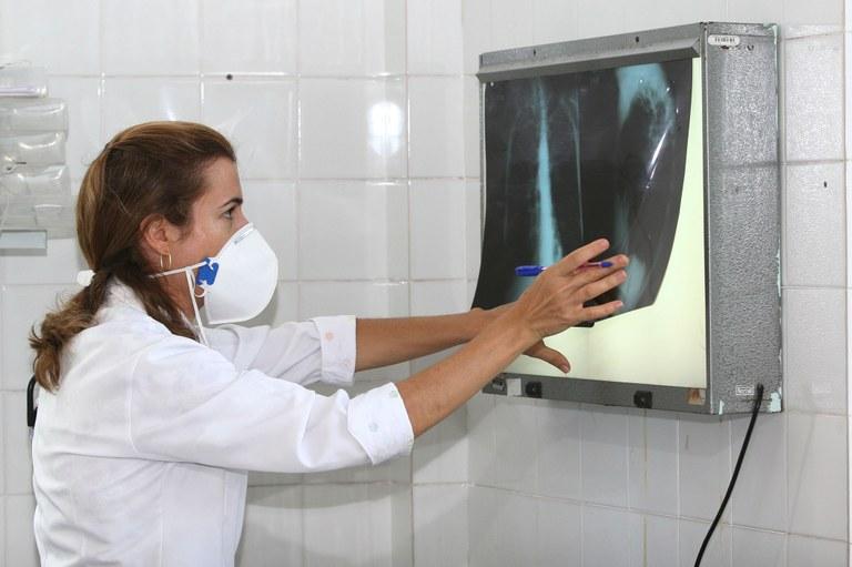 Governo lança Plano Nacional pelo Fim da Tuberculose | Portal Brasil